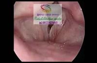 برترین کلینیک درمان حنجره در البرز 09121623463 گفتار توان گستر ابرز