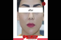 تزریق چربی | فیلم تزریق چربی | کلینیک پوست و مو رز | شماره 74