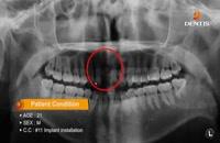 ایمپلنت - کلینیک دندانپزشکی تاج