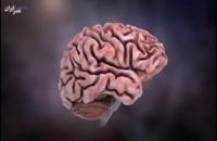 بیماری آلزایمر چگونه اتفاق میافتد؟