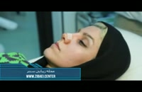 نحوه و آموزش چسب زدن بینی بعد از عمل جراحی بینی - زیبایی سنتر