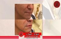 تزریق ژل | فیلم تزریق ژل | کلینیک پوست و مو رز |32