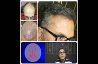 کاشت مو | فیلم کاشت مو | کلینیک پوست و مو رز | شماره 38