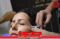 تزریق بوتاکس | فیلم تزریق بوتاکس | کلینیک پوست و مو رز | شماره 29