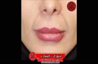 تزریق ژل | فیلم تزریق ژل | کلینیک پوست و مو رز | شماره 68