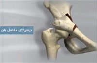 دیسپلازی مفصل ران در لگن