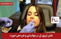 تزریق ژل | فیلم تزریق ژل | کلینیک پوست و مو هلیا | شماره 5