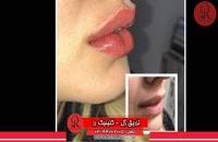 تزریق ژل | فیلم تزریق ژل | کلینیک پوست و مو رز |29