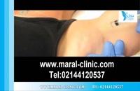 تزریق بوتاکس | فیلم تزریق بوتاکس | کلینیک پوست و مو مارال | شماره 13