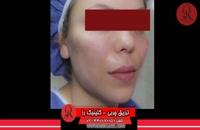 تزریق چربی | فیلم تزریق چربی | کلینیک پوست و مو رز | شماره37
