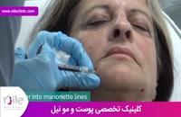 تزریق ژل | فیلم تزریق ژل | کلینیک پوست و مو نیل | شماره 19