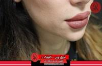 تزریق چربی | فیلم تزریق چربی | کلینیک پوست و مو رز | شماره26