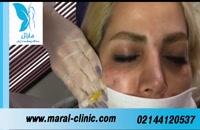 تزریق ژل | فیلم تزریق ژل | کلینیک پوست و مو مارال | شماره 12
