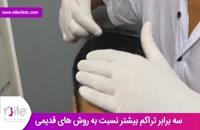 کاشت مو | فیلم کاشت مو | کلینیک پوست و مو نیل | شماره 28