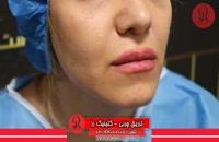 تزریق چربی | فیلم تزریق چربی | کلینیک پوست و مو رز | شماره30