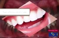 فیلم رهایی از سیاهی لثه دندان|کلینیک دندانپزشکی مدرن