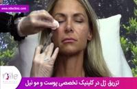 تزریق ژل | فیلم تزریق ژل | کلینیک پوست و مو نیل | شماره 2