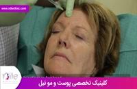 تزریق بوتاکس | فیلم تزریق بوتاکس | کلینیک پوست و مو نیل | شماره 4