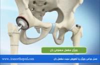 رویژن یا جراحی مجدد مفصل ران