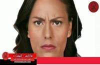 تزریق بوتاکس | فیلم تزریق بوتاکس | کلینیک پوست و مو رز | شماره 20