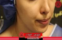 تزریق چربی | فیلم تزریق چربی | کلینیک پوست و مو رز | شماره28