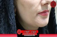 تزریق ژل | فیلم تزریق ژل | کلینیک پوست و مو رز |22