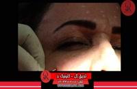 تزریق ژل | فیلم تزریق ژل | کلینیک پوست و مو رز |21