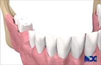مراحل کاشت ایمپلنت دندان