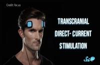 تاثیرات دستگاه تی دی سی اس 09121623463|گفتار توان گستر البرز
