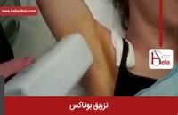 تزریق بوتاکس | فیلم تزریق بوتاکس | کلینیک پوست و مو هلیا | شماره 5