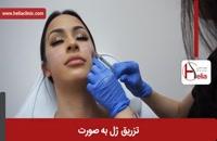 تزریق ژل | فیلم تزریق ژل | کلینیک پوست و مو هلیا | شماره 14