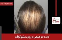 کاشت مو | فیلم کاشت مو | کلینیک پوست و مو هلیا | شماره 31