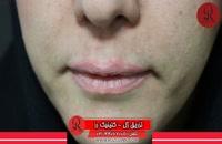 تزریق ژل | فیلم تزریق ژل | کلینیک پوست و مو رز |18