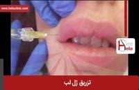 تزریق ژل | فیلم تزریق ژل | کلینیک پوست و مو هلیا | شماره 8
