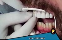 لمینت دندان چگونه انجام می شود