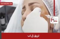 تزریق ژل | فیلم تزریق ژل | کلینیک پوست و مو هلیا | شماره 11
