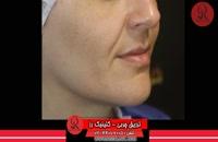 تزریق چربی | فیلم تزریق چربی | کلینیک پوست و مو رز | شماره 55