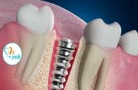 ویدیو جالب در مورد ایمپلنت دندان