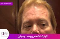 تزریق بوتاکس | فیلم تزریق بوتاکس | کلینیک پوست و مو نیل | شماره 2