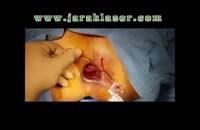 درمان فیستول با لیزر