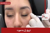 تزریق ژل | فیلم تزریق ژل | کلینیک پوست و مو هلیا | شماره 24