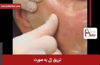 تزریق ژل | فیلم تزریق ژل | کلینیک پوست و مو هلیا | شماره 13