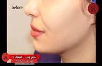 تزریق چربی | فیلم تزریق چربی | کلینیک پوست و مو رز | شماره 71