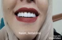 درمانگاه نسیم قیطریه - دندانپزشکی زیبایی – ارتودنسی – ایمپلنت – ونیرکامپوزیت – کاشت دندان – اصلاح طرح لبخند – لمینت دندان – لمینت سرامیکی