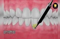 فیلم جراحی تحلیل لثه چگونه انجام می شود