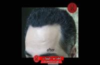 کاشت مو | فیلم کاشت مو | کلینیک پوست و مو رز | شماره 48