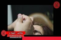 تزریق بوتاکس | فیلم تزریق بوتاکس | کلینیک پوست و مو رز | شماره 37