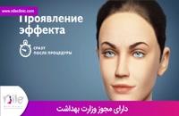 تزریق بوتاکس | فیلم تزریق بوتاکس | کلینیک پوست و مو نیل | شماره 3