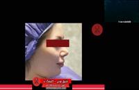 تزریق چربی | فیلم تزریق چربی | کلینیک پوست و مو رز | شماره41