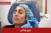 تزریق بوتاکس | فیلم تزریق بوتاکس | کلینیک پوست و مو هلیا | شماره 7